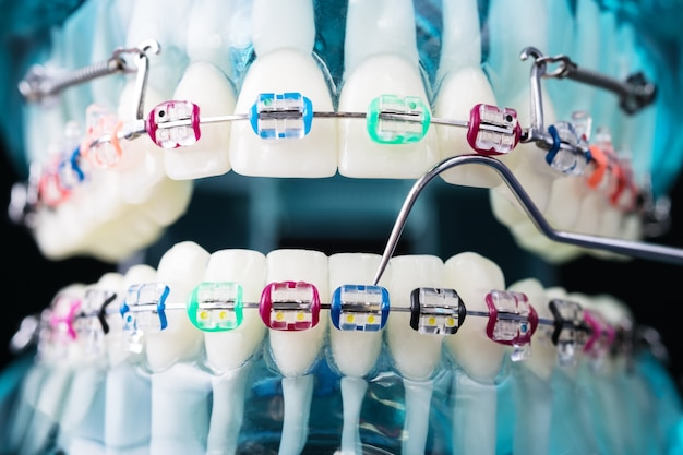 Modelo de ortodoncia y herramienta de dentista. modelo de demostración de dientes de variedades de ortodoncia.