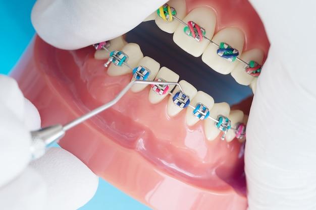 Modelo de ortodoncia y herramienta de dentista: modelo de demostración de dientes de variedades de ortodoncia
