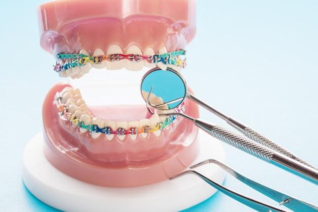 Modelo de ortodoncia y herramienta de dentista. modelo de demostración de dientes.