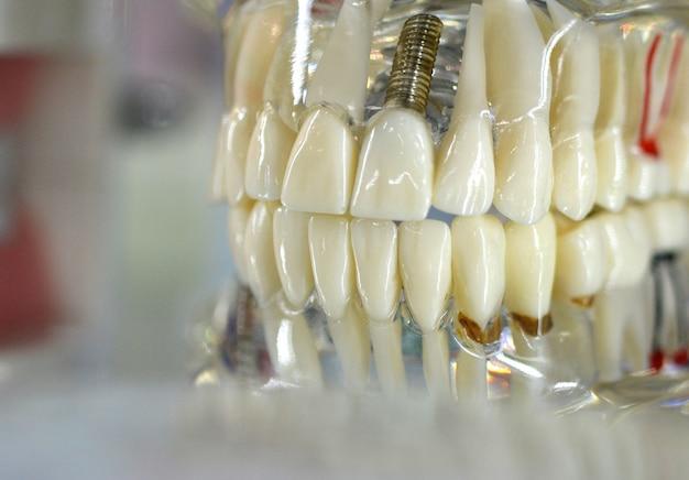 Modelo transparente de dientes humanos