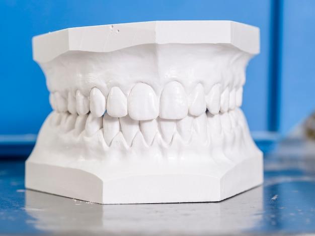 Molde blanco dental de yeso