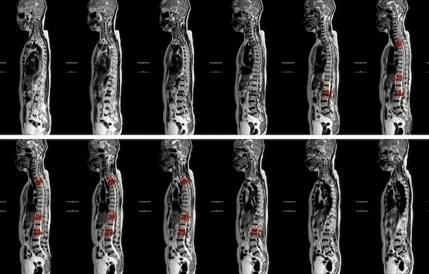 Mri de la impresión de la espina thoracolumbar: compresión patológica moderada de los niveles de t11 y l2 con la mejora de múltiples lesiones medulares en los niveles de t1, t10 a t12, l2, l3 a l5.