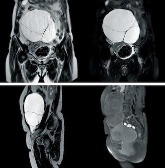Mri de toda la historia de abdomen: una mujer de 67 años, que presenta una enorme lesión quística compleja en el abdomen.