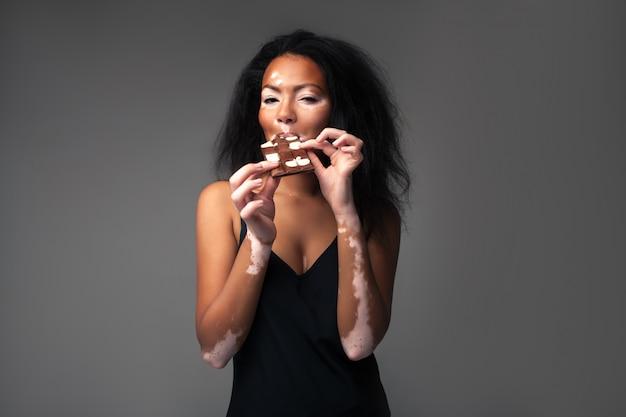 Muchacha africana hermosa con vitiligo en el estudio que come el chocolate blanco y negro.