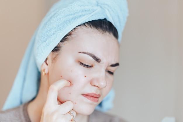 Muchacha bonita con la toalla en la cabeza que exprime la espinilla en toalla en su cabeza.