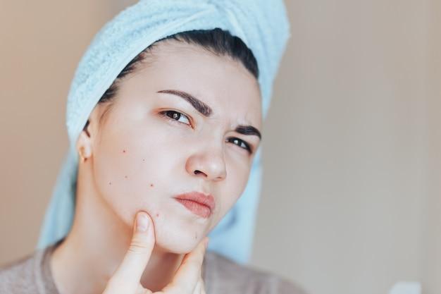 Muchacha con el ceño fruncido en shock de su acné con una toalla en la cabeza.