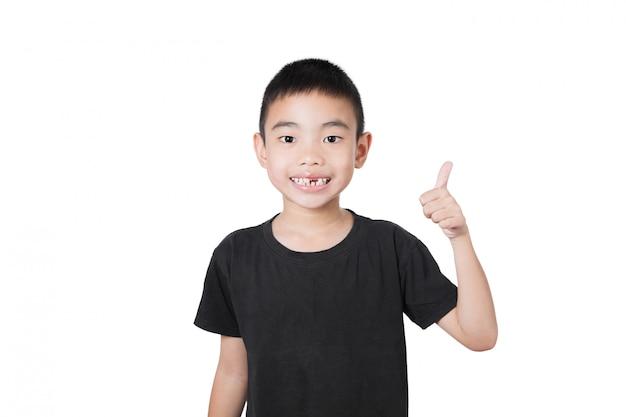 Muchacho asiático de la sonrisa con el diente quebrado, pulgares para arriba en el fondo blanco