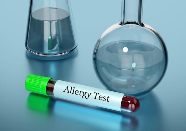 Muestra de sangre en tubo de ensayo para prueba de alergia en laboratorio