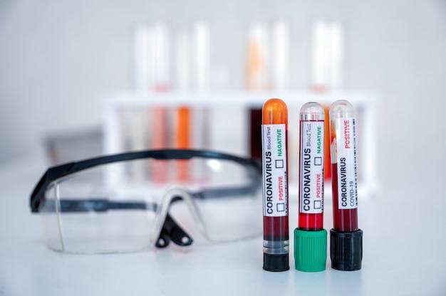 Muestra de tubos de análisis de sangre para diagnóstico de coronavirus, infección por covid-19 y gafas de seguridad en laboratorio