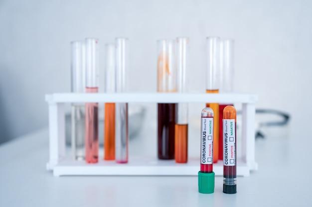 Muestra de tubos de análisis de sangre para diagnóstico de coronavirus, infección por covid-19 en laboratorio