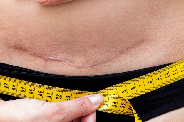 Mujer con cesárea cicatriz posparto que mide la cintura después del parto. chequeo corporal. concepto de dieta de fitness.