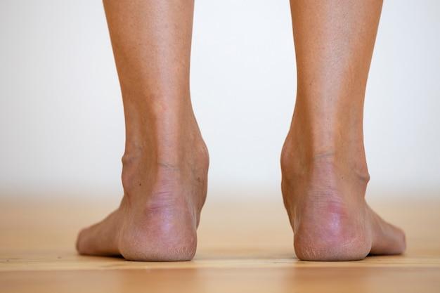 Mujer descalza en el suelo. concepto de cuidado de las piernas y tratamiento de la piel.