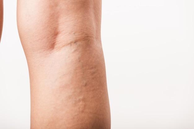 Mujer dolorosas varices y arañas vasculares en la pierna