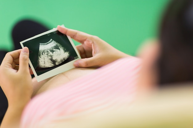 Mujer embarazada que mira la exploración del ultrasonido del bebé, cerca de la exploración