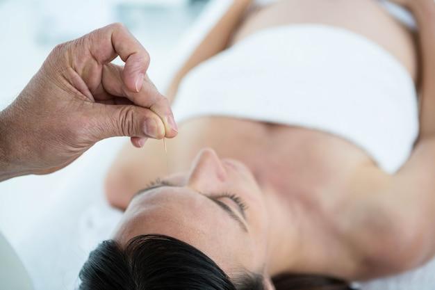 Mujer embarazada en una terapia de acupuntura en el spa