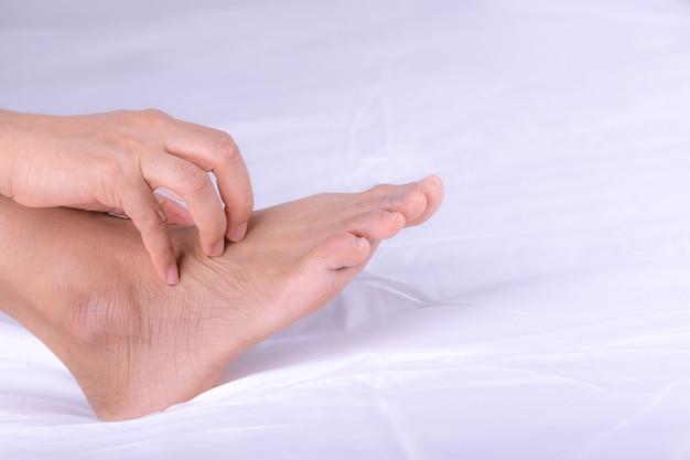 Mujer con erupción cutánea o pápula y rasguño en el pie por alergias, problema de cuidado de la piel de alergia a la salud.