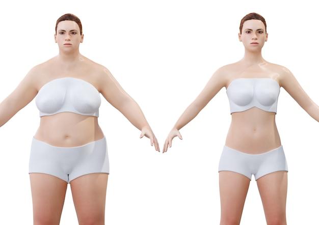 Mujer joven antes y después de la pérdida de peso y adelgazamiento aislado sobre fondo blanco. representación 3d