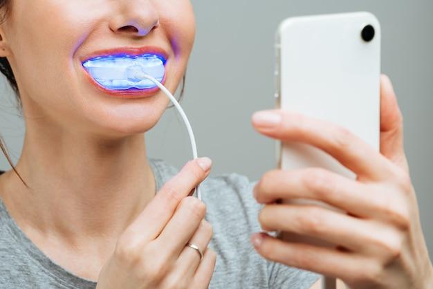 Una mujer joven se dedica a un complejo de blanqueamiento dental casero para blanquear los dientes con lámpara uv
