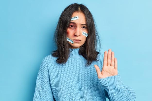 Mujer joven maltratada con ojos ensangrentados y moretones hace que el gesto de parada se convierta en víctima de violencia doméstica o discriminación viste suéter