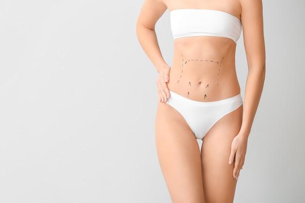 Mujer joven con marcas en su vientre contra un fondo claro. concepto de cirugía plástica