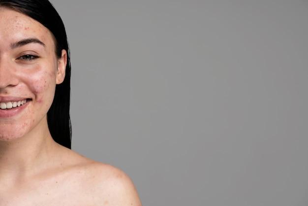 Mujer joven mostrando su acné con confianza