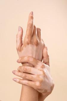 Mujer joven mostrando sus partes de la piel de vitiligo