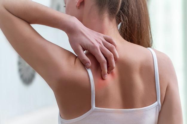 Mujer joven que sufre de picazón en la piel y rascarse un lugar con picazón.