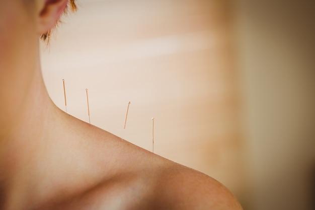 Mujer joven recibiendo tratamiento de acupuntura