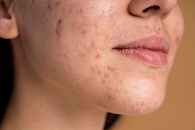 Mujer joven segura con primer plano de acné