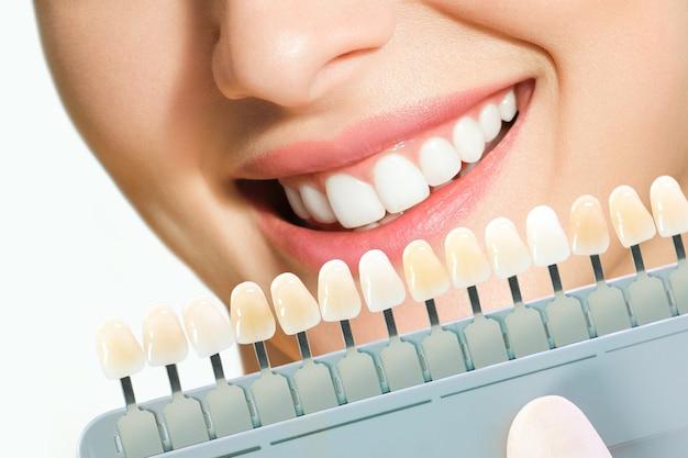 Mujer joven sonriente. blanqueamiento dental cosmetológico en una clínica dental. selección del tono del diente implantado.