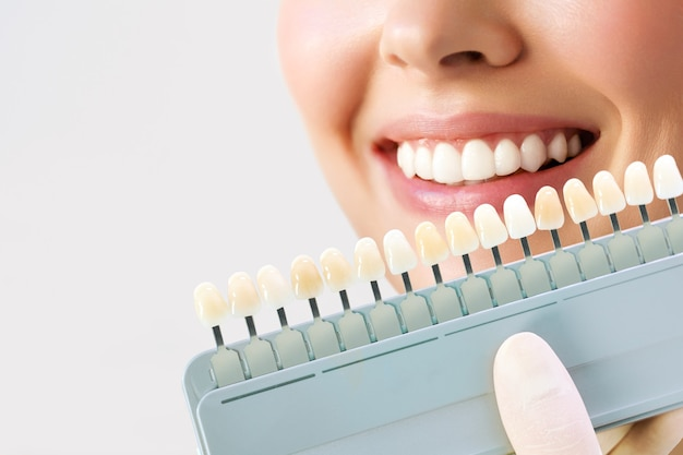 Mujer joven sonriente. blanqueamiento dental cosmetológico en una clínica dental. selección del tono del