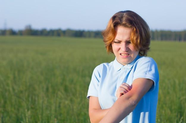 La mujer joven tiene una reacción alérgica a los insectos, picaduras de mosquitos. mujer rasca su mano, enrojecimiento en la piel. la niña sufre de irritación de la piel, alergia al aire libre, día de verano en el campo