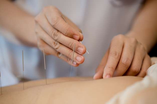 Mujer joven en tratamiento de acupuntura