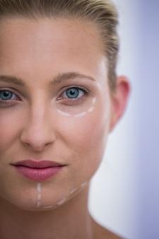 Mujer con marcas dibujadas para procedimiento de botox
