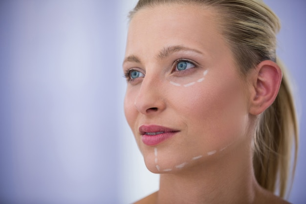 Mujer con marcas dibujadas para tratamientos cosméticos.