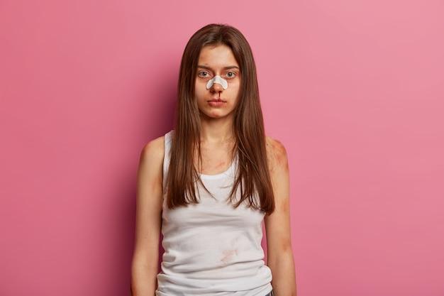 Mujer con moretones y nariz rota, gravemente herida