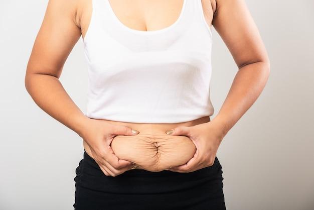 Mujer mostrando estrías en el vientre