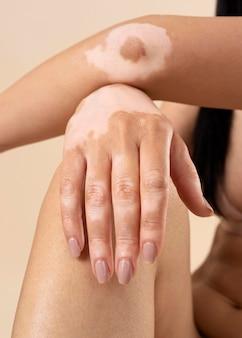 Mujer mostrando sus partes de piel de vitiligo