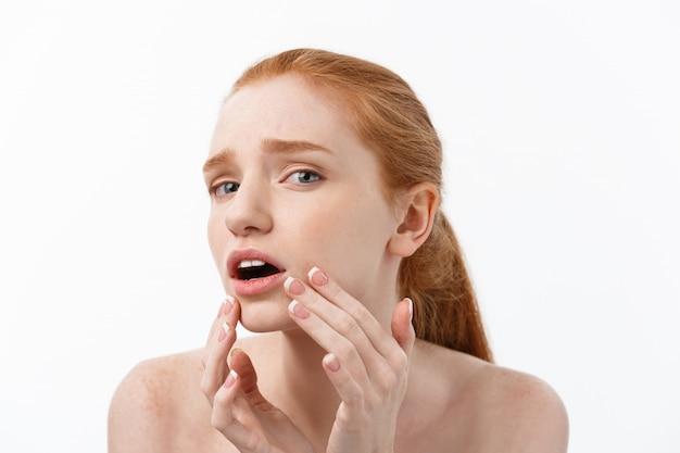 Mujer pelirroja muestra los dedos sobre el acné en la cara.