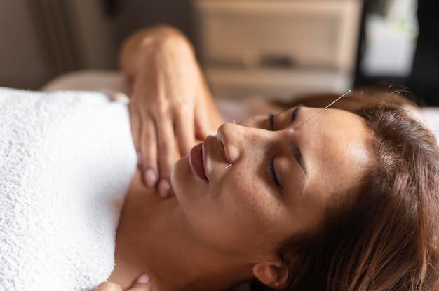 Mujer de primer plano experimentando acupuntura