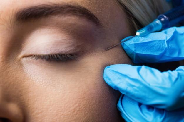 Mujer que recibe la inyección de botox en la frente