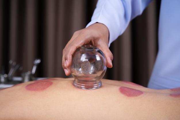 Mujer recibiendo tratamiento de ventosas en la espalda