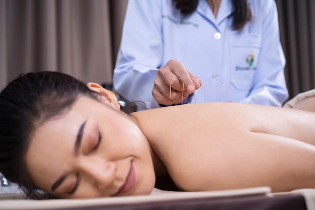 Mujer sometida a tratamiento de acupuntura en la espalda
