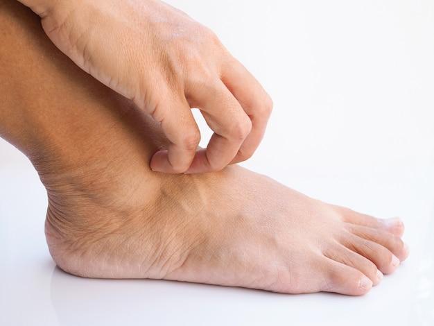 Mujer tailandesa asiática picazón y arañazos en los pies, enfermedades de la piel, piel seca o picaduras de insectos en los pies.