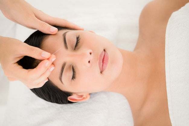 Mujer en terapia de acupuntura