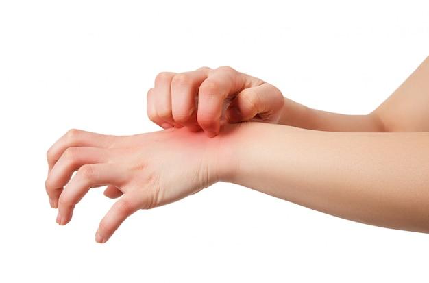 La mujer tiene erupción cutánea picazón en el brazo