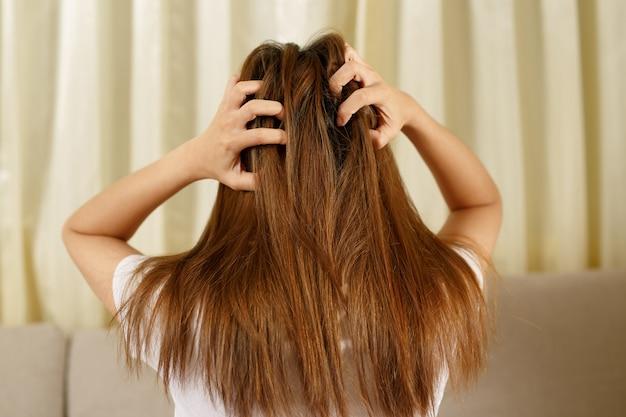 Una mujer tiene problemas con el cabello y el cuero cabelludo, tiene caspa por reacciones alérgicas a los champús. y acondicionador de cabello