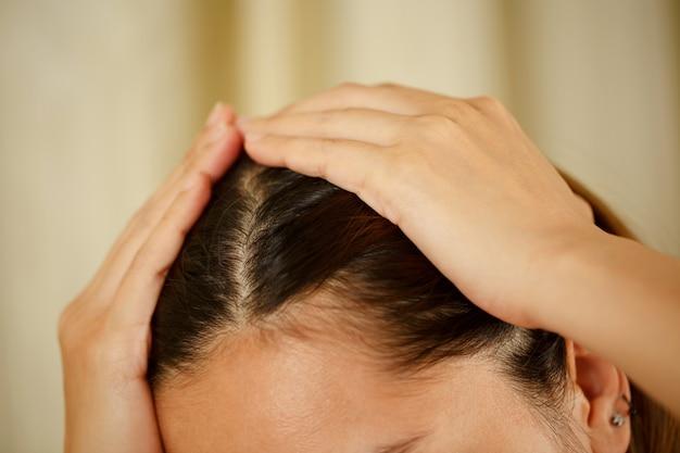 Una mujer tiene problemas con el cabello y el cuero cabelludo.