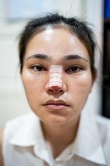 La mujer tiene que hacer una nariz, rinoplastia.