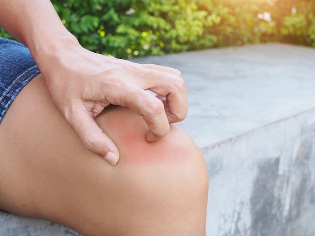 Las mujeres asiáticas tienen problemas de piel, piel seca y picazón en la pierna de la rodilla y se rascan con la mano